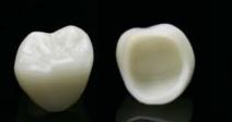 歯のセラミック