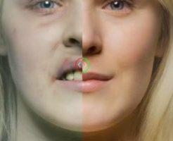 タバコ被害の女性の顔