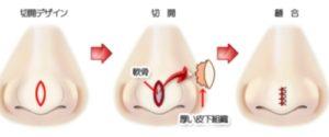 鼻骨幅寄せ手術のイラスト